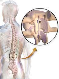 rehabilitación tras la cirugía de columna