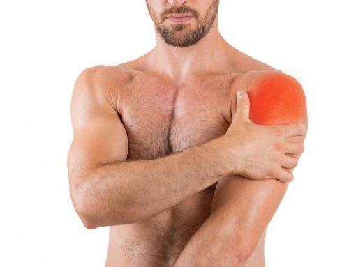 """La bursitis subacromial o """"de hombro"""": Tratamiento en fisioterapia"""